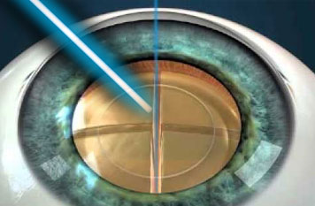 Femtosecond Laser Cataract Treatment
